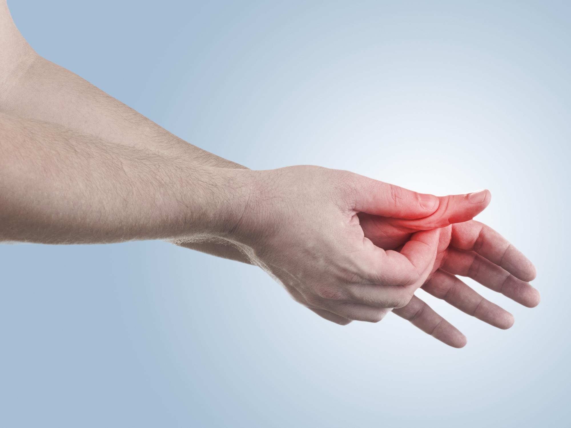 Вывих пальца руки лечение в домашних условиях - MedikYA 67